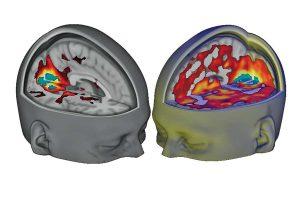 Hersenscans tonen de invloed van LSD op het brein. Bron: Carhart-Harris et al.