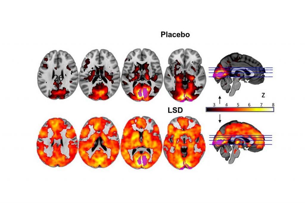 Verschil tussen een brein op placebo en op LSD. Bron: Carhart-Harris et al.