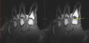 Het knakken van de vingers gaat gepaard met een kleine holte in de gewrichtsvloeistof: een soort 'vacuüm', aldus de onderzoekers. Bron: University of Alberta