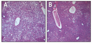 De vetcellen in de lever van muizen met diabetes type 2 zijn volledig verdwenen na een aantal injecties met FGF1. De lever lijkt weer op een normale lever doordat die weer glucose uit het bloed kan opnemen. Bron:Salk Institute