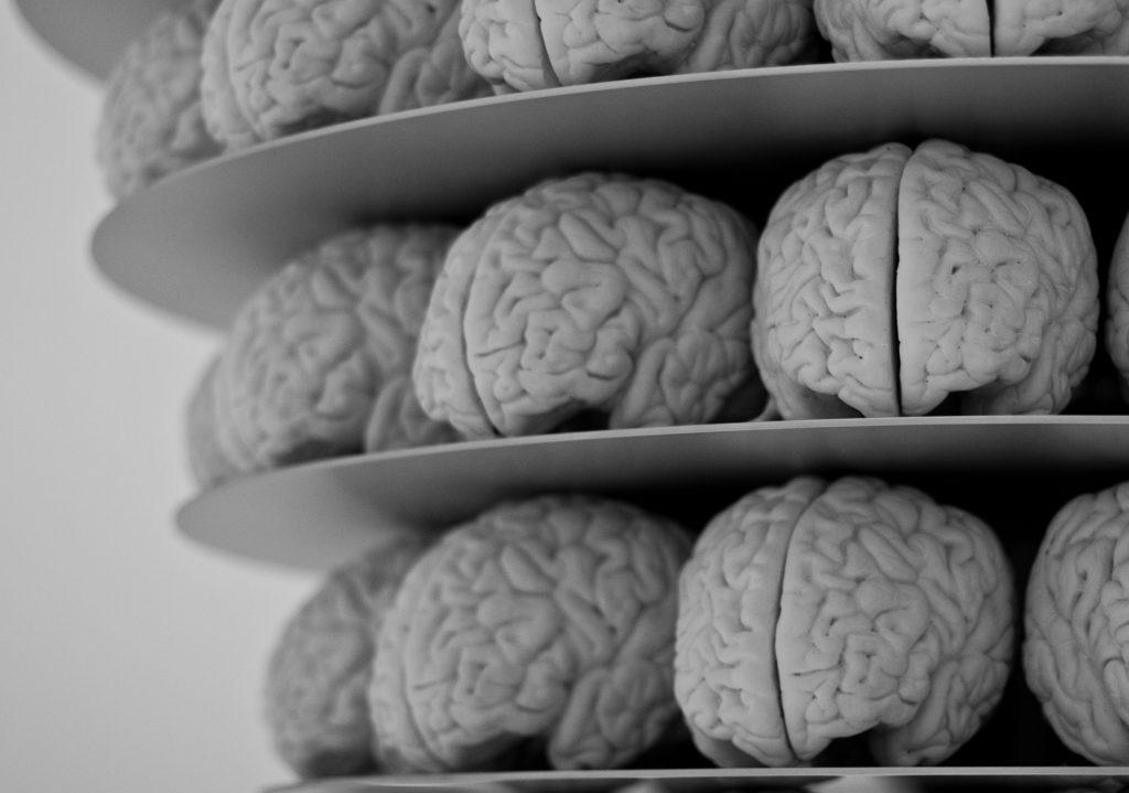 Hersenen. Beeld: Neil Conway/Flickr