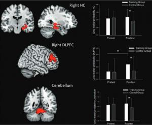 Het volume van de grijze massa neemt in verschillende hersengebieden flink toe dankzij gamen. Bron: S. Kühn et al