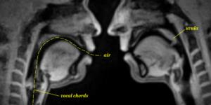 Ook leuk, kletsen in een MRI-scan. Bron: Vox