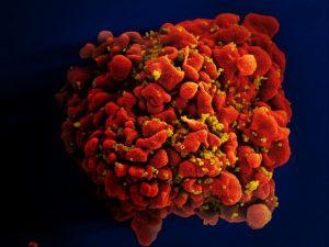 Hiv geïnfecteerde T-cel