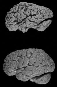 Alzheimer zorgt voor een vermindering van het breinweefsel. Beeld: wikimedia commons, Hersenbank