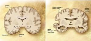 De hersenen van alzheimerpatiënten (rechts) krimpen door de afbraak van zenuwverbindingen en hersenweefsel. Bron: Wikimedia Commons