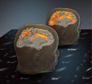 De achterste afbeelding toont de patronen van de rustende hersengolven voor de proef. De voorste scan, op de dag na het experiment, laat een ander patroon zien. Bron: Weizmann Institute
