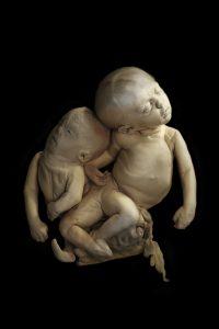 Een asymmetrische Siamese tweeling Bron: Marieke de Lorijn