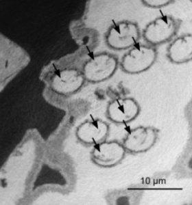 Een röntgenbeeld van het sperma van de fossiele mosselkreeftjes. De celkern, waarin de DNA-dragende chromosomen zaten, zijn te zien als donkere vlekjes die met pijltjes zijn aangegeven. Bron: R. Matzke-Karasz
