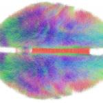 verbindingen in het brein