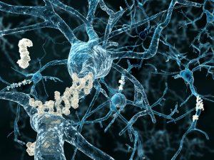 Alzheimerpatiënten vertonen ophopingen van plakkerige eiwitten in het brein. Beeld: Thinkstock