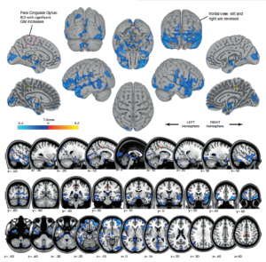 astronauts-brains-change-shape-during-spaceflight-orig1-20160131