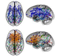 brainconnections