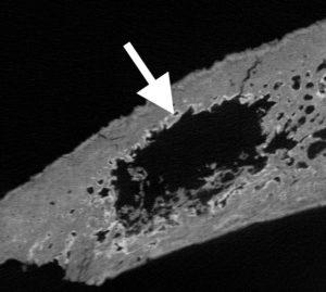 CT-scan van een middeleeuws bot met een uitzaaiing.