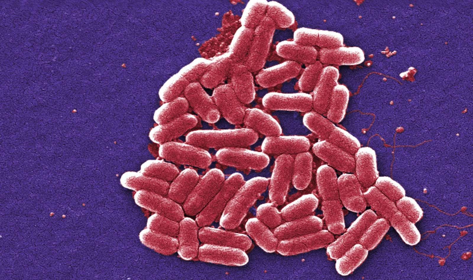 Gevaarlijke antibioticaresistentie in bacteriën